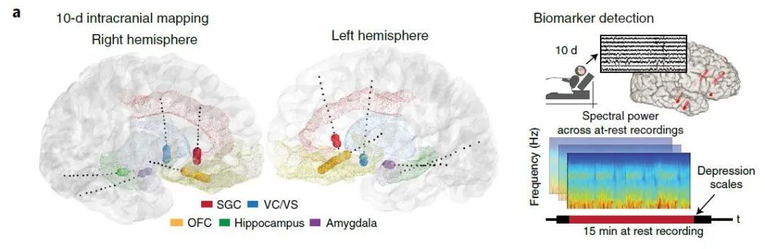 图注:SEEG电极在大脑中的分布位置以及对生物标志物的检测